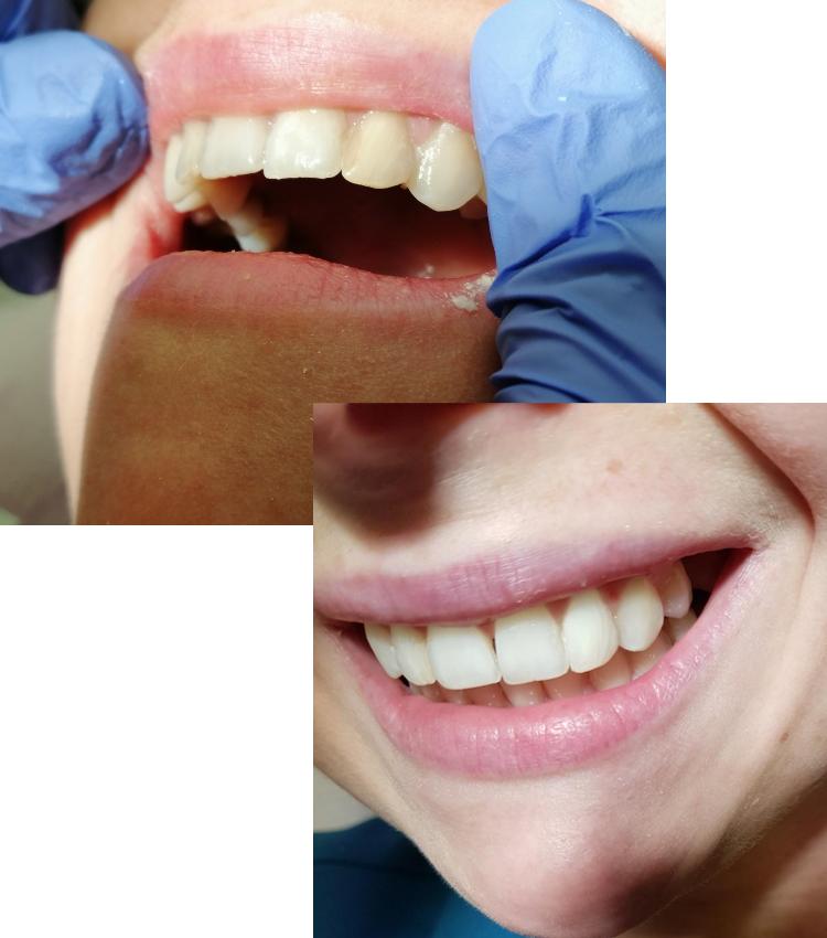 Wybielanie martwych  zębów Lublinn